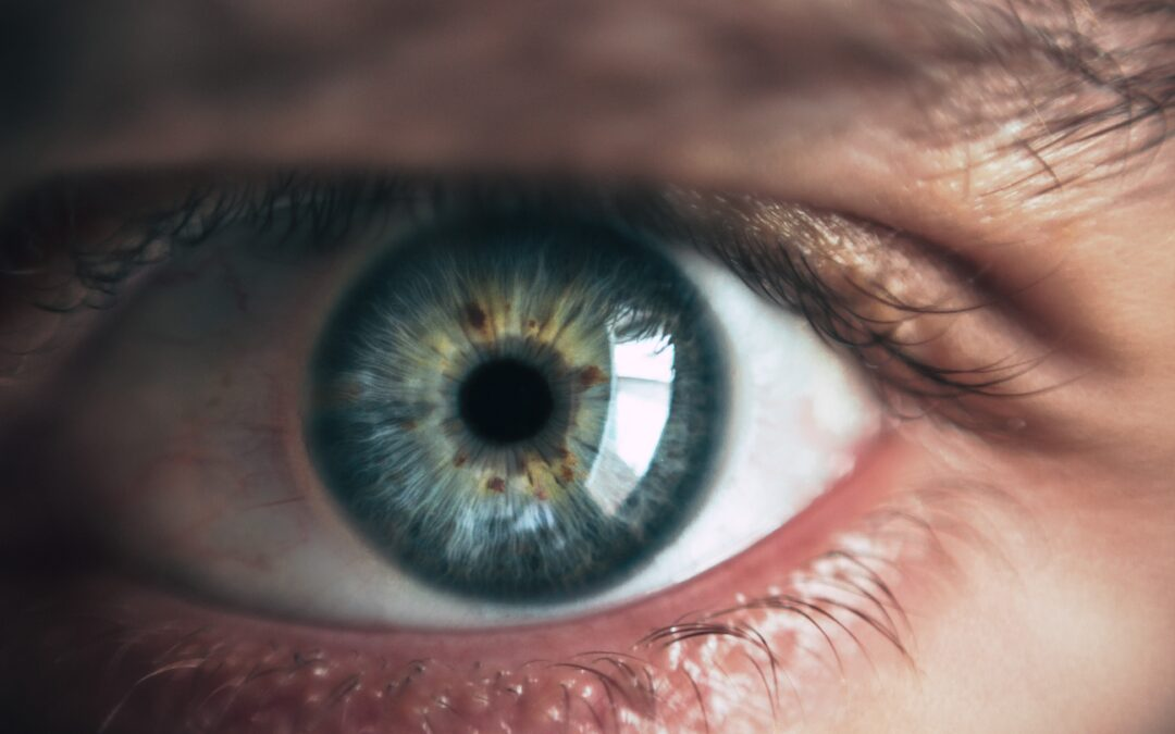 Can CBD Make Your Eyes Red?